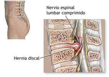 Rápidamente calmar el dolor agudo a la espalda