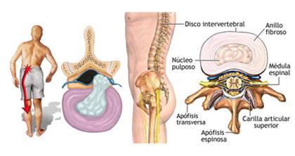 El dolor en la zona subcostal izquierda detrás de la espalda arriba
